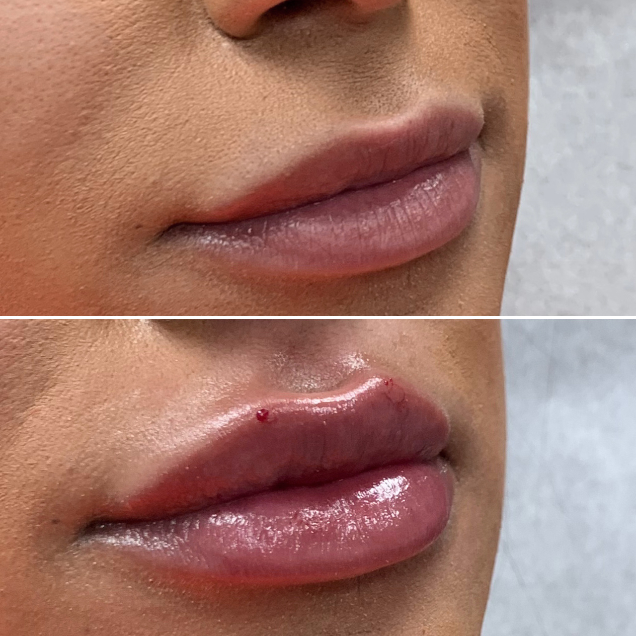 Lip Fillers Results Image 1