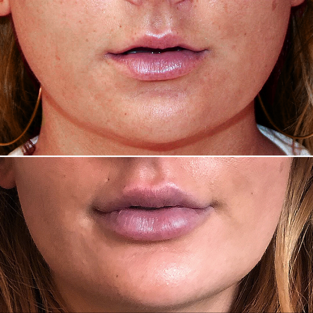 Lip Fillers Results Image 2