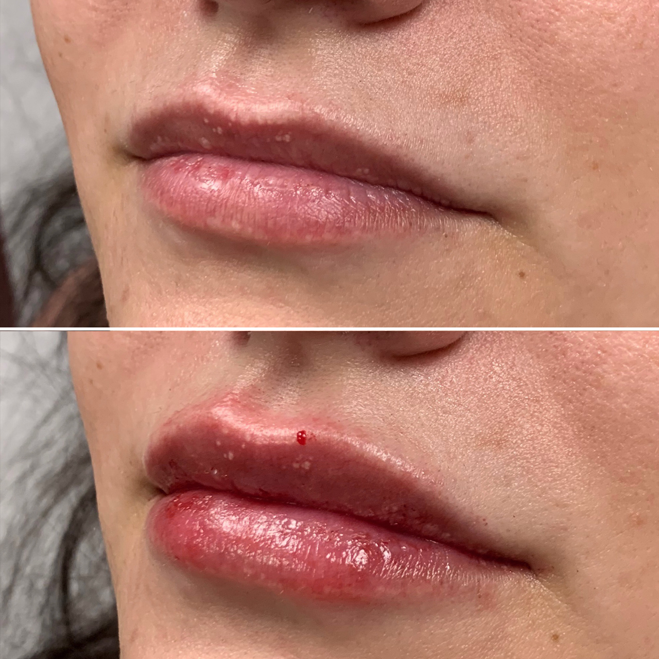Lip Fillers Results Image 3