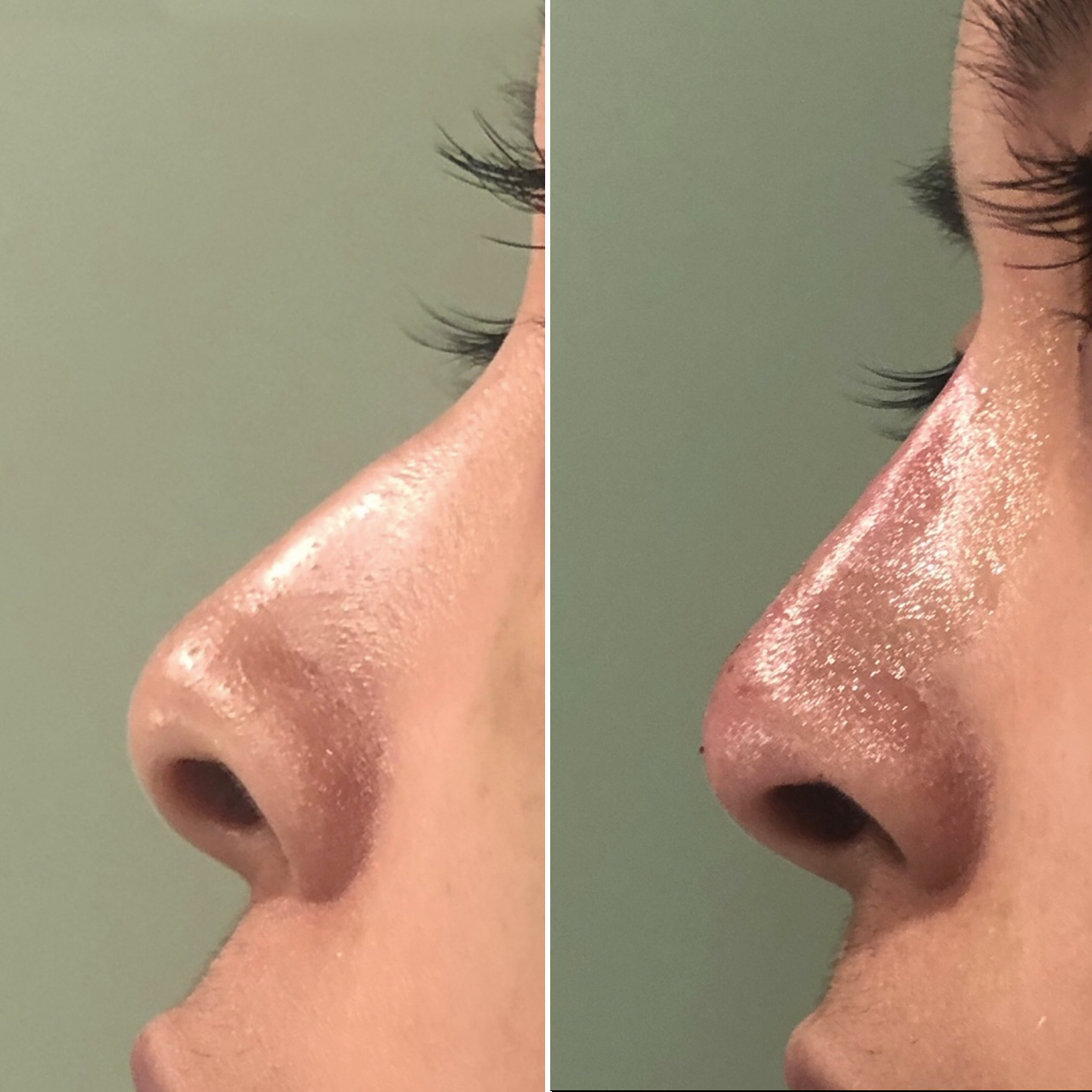 Non-surgical Nose Job Results Image 1